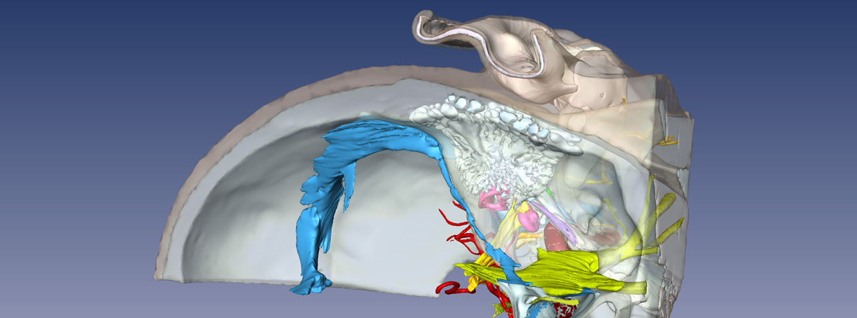 Downloadable 3-D Virtual Models of the Human Temporal Bone - Mass ...